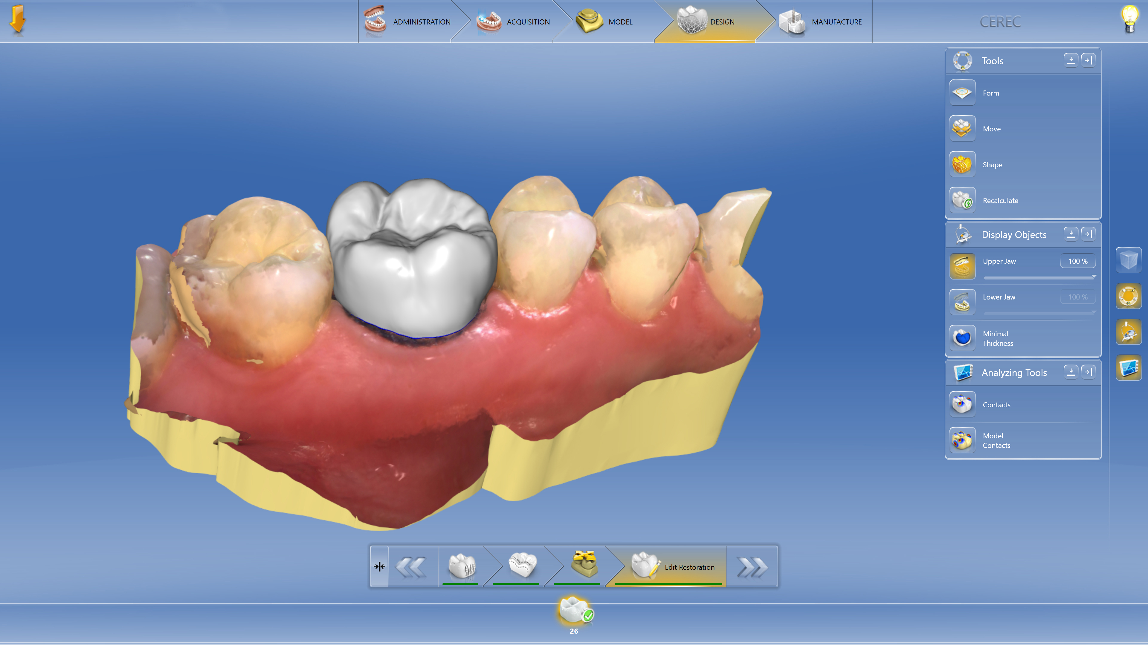 Cerec Sw 45 Intuitive Work Using Intelligent Software To -1214