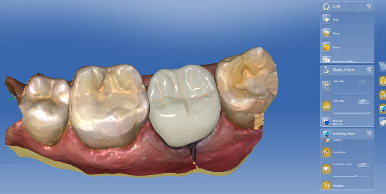 Cerec Sw 4 5 Intuitive Work Using Intelligent Software To