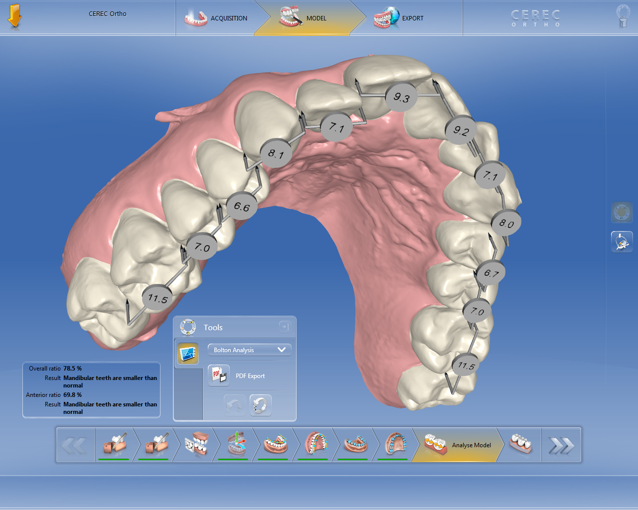 Reliable New Digital Solutions For Orthodontics
